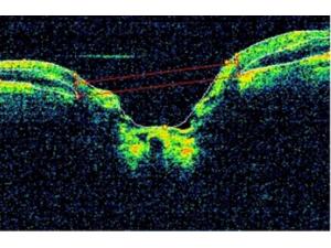 OCT in Glaucoma