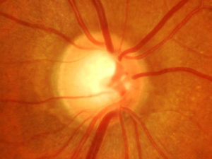 Clinical Examination of the Optic Nerve
